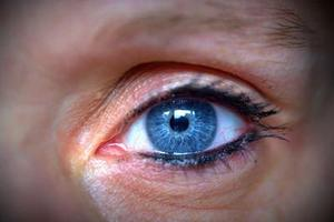 去黑眼圈用什么产品比较好呢?