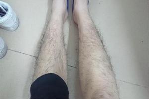 女生腿毛怎么去