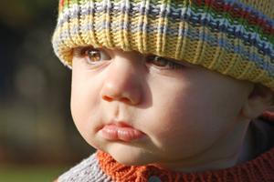 宝宝高烧后出疹子,有可能出两次疹子吗