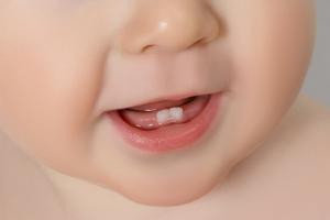 宝宝20天了,吃奶吐是什么原因